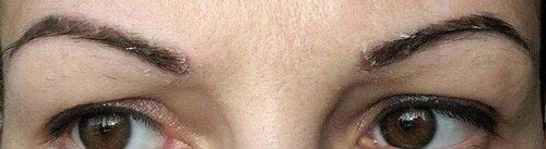 Шелушится кожа под бровями — какие болезни могут скрывать