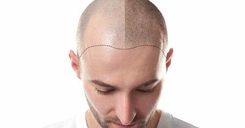 Как делают процедуру татуажа головы -отзывы, нюансы процедуры