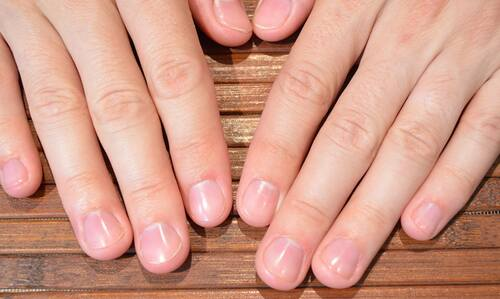 Почему ногти не растут?