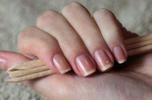 Что такое матрикс ногтя: строение, описание и лечение