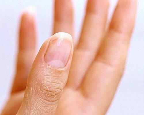 Лечение трещин на ногте
