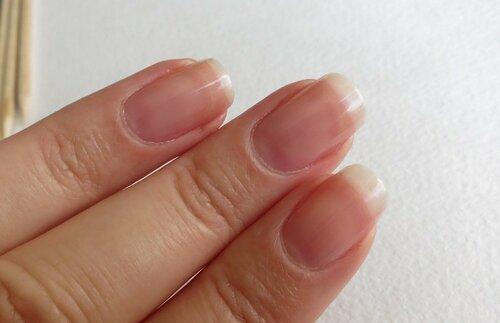 Все о тонких ногтях