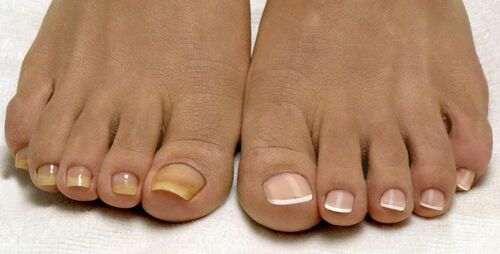 Педикюр с грибком ногтей