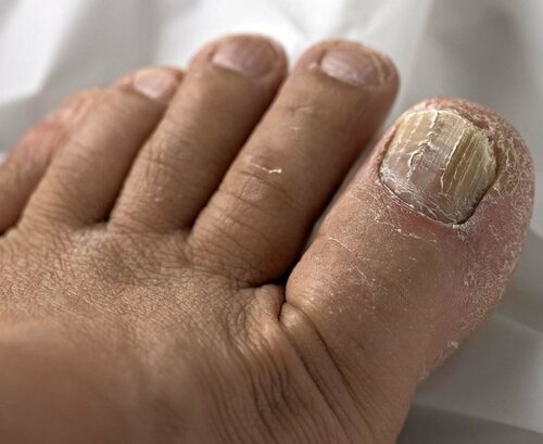 Чем опасен грибок ногтей?
