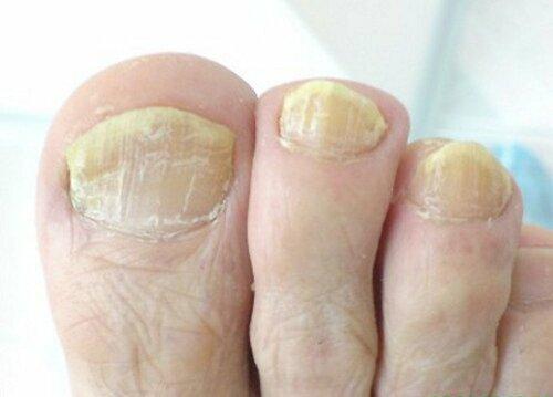 Как выглядит грибок ногтей на ногах?