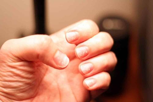 Почему после гель-лака слоятся ногти?