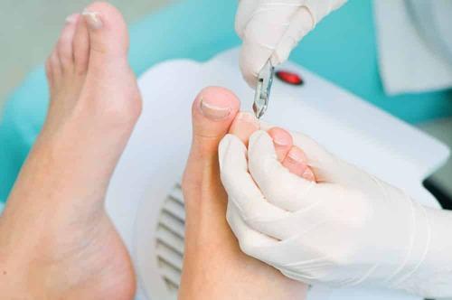 Удаление вросшего ногтя — основные методики