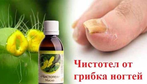 Лечение грибка ногтей чистотелом