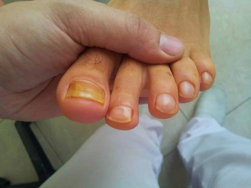 Почему желтеют ногти на ногах