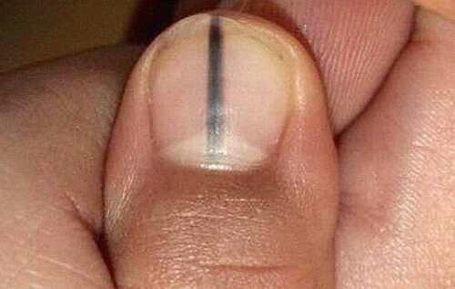 Меланома ногтевой пластины