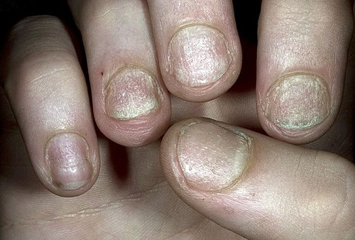 Псориаз ногтей