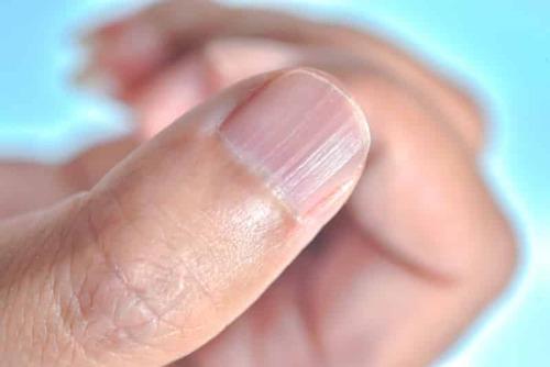 Ребристые ногти на руках