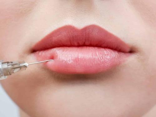 Липофилинг губ — что это такое, и как осуществляется процедура?