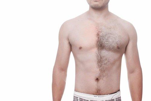 Мужская лазерная эпиляция бикини — особенности