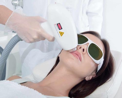 Лазерная эпиляция волос на лице — особенности технологии