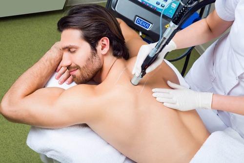 Достоинства лазерной эпиляции для мужчин