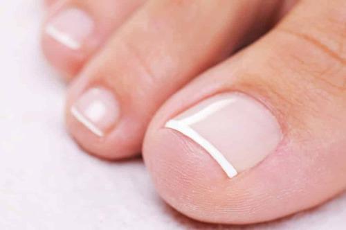 Утолщение ногтей на ногах