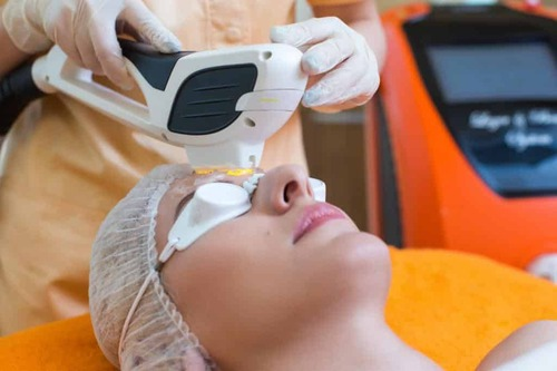 Неодимовый лазер в косметологии – безопасная эпиляция