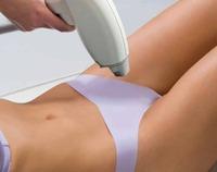 Чем может быть опасна лазерная эпиляция глубокого бикини?