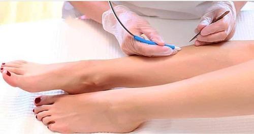 Как сделать кожу гладкой — электроэпиляция ног