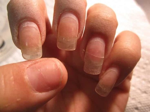 Как восстановить ногти после гель-лака?