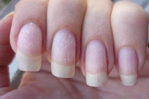 Почему ногти после гель-лака стали очень тонкими?
