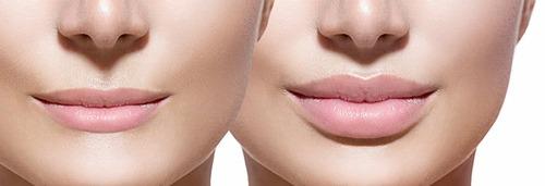 Массаж после увеличения губ — как правильно разминать губы