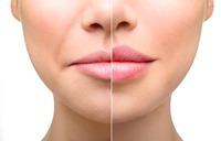 Возможные осложнения после увеличения губ, и методы их предотвращения