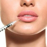 ТОП лучших филлеров для увеличения губ