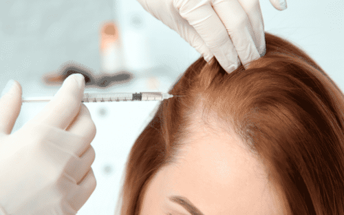 Мезотерапия для волос: какой результат ждать от модной процедуры