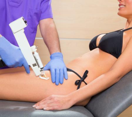 Мезотерапия тела для похудения: современная методика коррекции фигуры