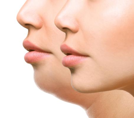 Мезотерапия шеи и второго подбородка: особенности процедуры