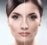 Мезотерапия за 40: преимущества процедуры для зрелой кожи