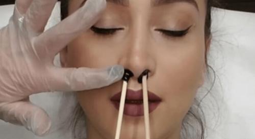 Как удалить волосы в носу — простые способы избавления в домашних условиях