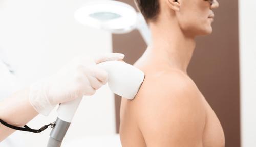Как удалить волосы на спине? Популярные способы эпиляции