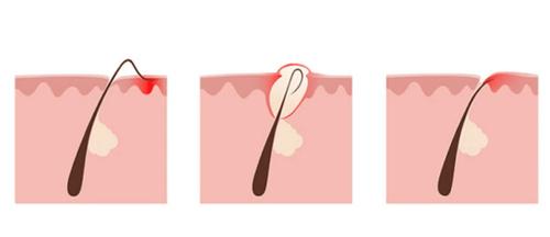 Что делать, если после депиляции или эпиляции врастают волосы?