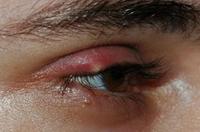 Перхоть на ресницах – причины, заболевания, факторы риска и как убрать белый налет с ресниц