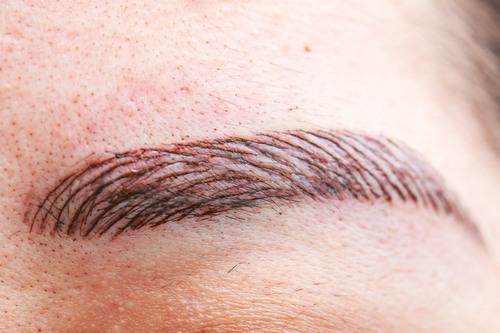 Удаление татуажа лазером: как проходит, сколько сеансов потребуется