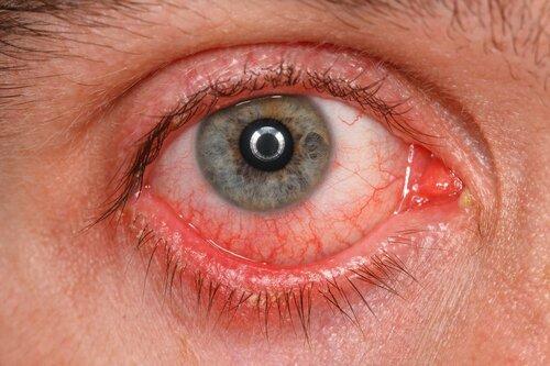 Аллергия на наращивание ресниц — симптомы,  причины и последствия