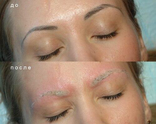 Что такое удаление татуажа бровей лазером, а также фото до и после