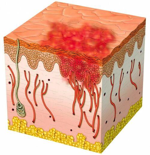 Как избавиться от микроблейдинга бровей в салоне и дома?
