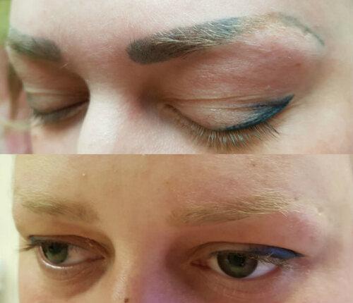 Как удалить татуаж бровей в салоне и дома