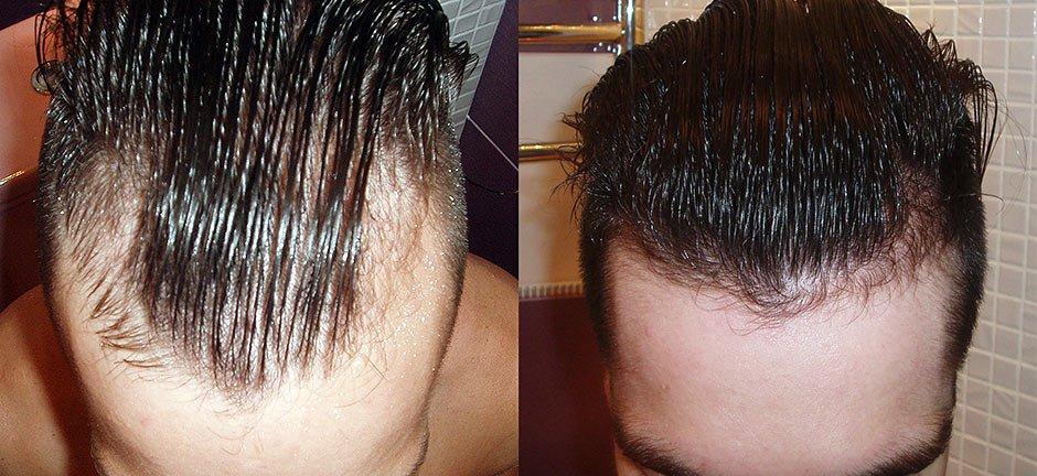 наращивание волос для мужчин