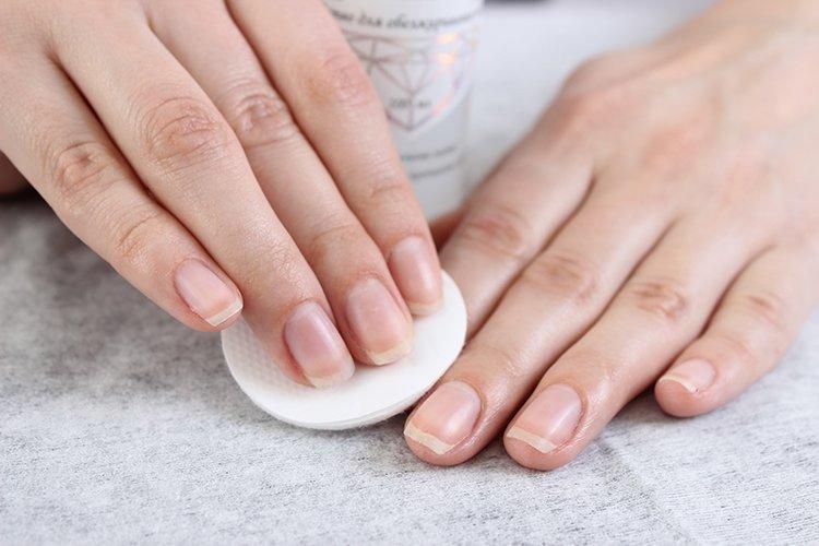 матрикс ногтя