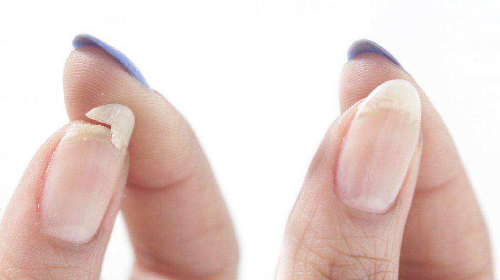 ремонт ногтя гелем