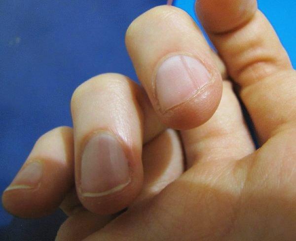 трещины на ногте