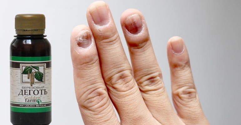 деготь березовый от грибка ногтей