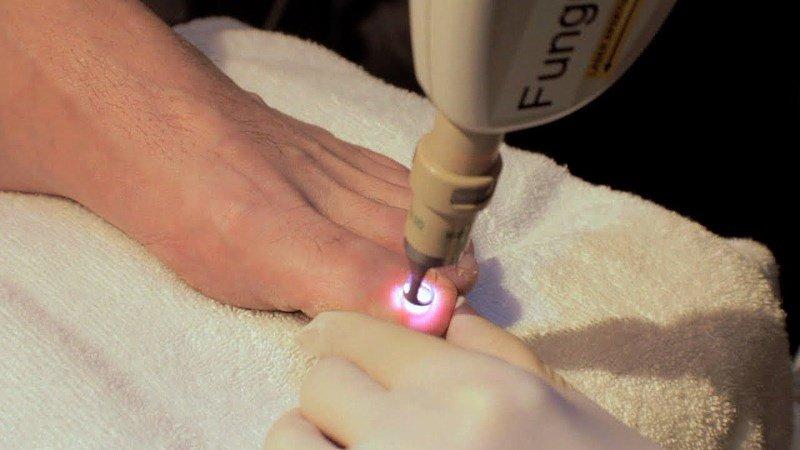 лазерное удаление вросшего ногтя