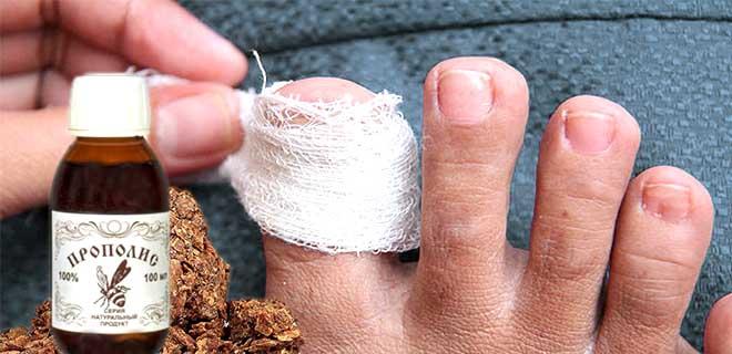 прополис от грибка ногтей