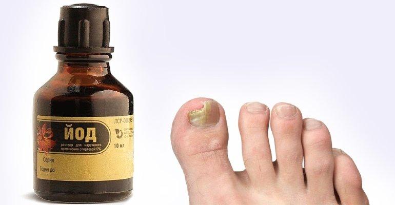 раствор йода от грибка ногтей